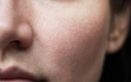 Huden och tarmfloran - Super Synbiotics